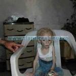 copii malnutritie